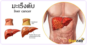 มะเร็งตับ โรคตับ โรคมะเร็ง โรคไม่ติดต่อ