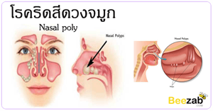 โรคริดสีดวงจมูก โรคทางเดินหายใจ โรคจมูก โรคต่างๆ