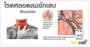 โรคหลอดลมอักเสบ โรคทางเดินหายใจ โรคติดเชื้อ โรคติดต่อ
