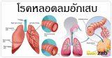 โรคหลอดลมอักเสบ โรคติดเชื้อ โรคทางเดินหายใจ โรคติดต่อ