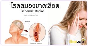 โรคซีวีเอ โรคอัมพาต ภาวะสมองขาดเลือด โรคสมองขาดเลือด