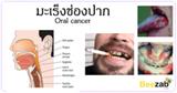 มะเร็งช่องปาก โรคมะเร็ง โรคในช่องปาก เป็นมะเร็งช่องปาก