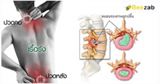 หมอนรองกระดูกทับเส้นประสาท โรคระบบประสาท โรคกระดูก