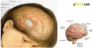 โรคฝีในสมอง โรคสมอง โรคติดเชื้อ ฝีที่สมอง