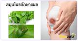 สมุนไพรรักษาแผล สมุนไพร สมุนไพรไทย