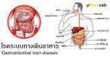 โรคระบบทางเดินอาหาร โรคในช่องท้อง โรคระบบย่อยอาหาร โรคระบบขับถ่าย