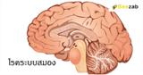โรคสมอง โรคเกี่ยวกับระบบความจำ โรคเกี่ยวกับสมอง สมองผิดปรกติ