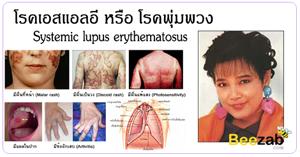 โรคแพ้ภูมิต้านทานตัวเอง โรคเอสแอลอี โรคพุ่มพวง โรคลูปัส