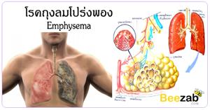 โรคถุงลมโปร่งพอง ภาวะปอดอุดกั้น โรคระบบทางเดินหายใจ โรคปอด