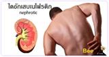 โรคไตรั่ว โรคไต ไตอักเสบเนโฟรติก ภาวะไตรั่ว