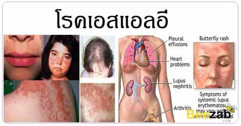 โรคเอสแอลอี โรคพุ่มพวง โรคแพ้ภูมิต้านทานตนเอง โรคไม่ติดต่อ