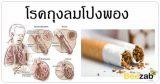 โรคถุงลมโป่งพอง โรคปอด โรคไม่ติดต่อ โรคทางเดินหายใจ