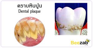 คราบหินปูน โรคในช่องปาก หินปูนเกิดจากอะไร การรักษาหินปูน