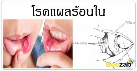 แผลร้อนใน แผลในปาก โรคไม่ติดต่อ