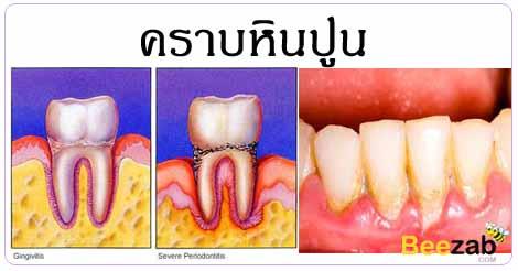 คราบหินปูน โรคในช่องปาก โรคไม่ติดต่อ โรคเกี่ยวกับฟัน