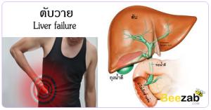 ตับวาย ตับหล้มเหลว โรคตับ กินยาพาราเกินขนาด