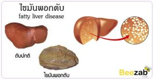 ไขมันพอกตับ ไตรกรีเซอไรด์ในเลือดสูง ไขมันเกาะที่ตับ โรคตับ