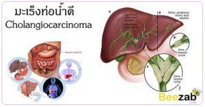 มะเร็งท่อน้ำดี โรคมะเร็ง ตัวเหลืองตาเหลือง กินปลาดิบ