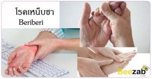 โรคเหน็บชา อาการมือเท้าชา โรคระบบประสาท โรคขาดวิตามินบี1