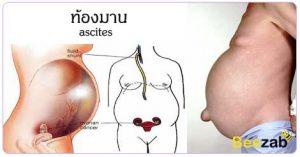โรคท้องมาน โรคท้องโต โรคท้องบวม โรคตับ