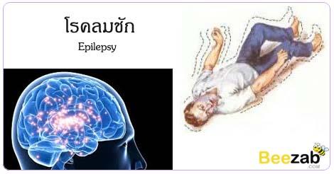 โรคลมชัก โรคลมบ้าหมู โรคระบบประสาทและสมอง โรคไม่ติดต่อ