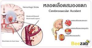 หลอดเลือดสมองแตก เส้นเลือดสมองแตก โรคสมอง อัมพฤษ์