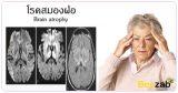 สมองฝ่อ โรคสมองฝ่อ สมองเสื่อม โรคคนแก่