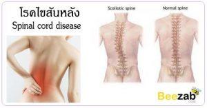 โรคไขสันหลัง โรคข้อและกระดูก โรคระบบประสาท โรคไม่ติดต่อ