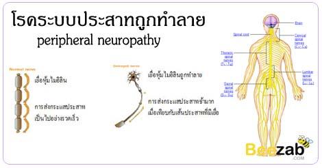 ระบบประสาทถูกทำงาย เส้นประสาทส่วนผลายถูกทำลาย โรคระบบประสาทและสมอง โรค