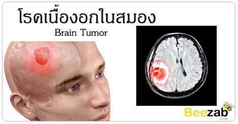 โรคเนื้องอกในสมอง เนื้องอกในสมอง โรคสมอง โรคระบบประสาทและสมอง
