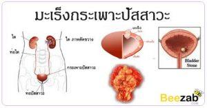 มะเร็งกระเพาะปัสสาวะ โรคมะเร็ง โรคไม่ติดต่อ โรคระบบทางเดินปัสสาวะ
