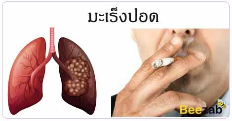 มะเร็งปอด โรคมะเร็งปอด การรักษามะเร็งปอด โรคมะเร็ง
