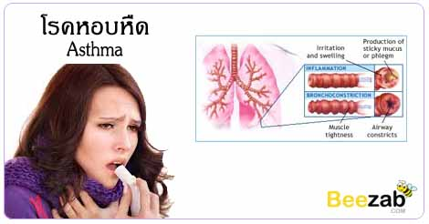 โรคหืดหอบ โรคหอบหืด โรคระบบทางเดินหายใจ หายใจไม่ออก