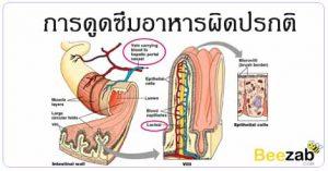 การดูดซึมสารอาหารผิดปรกติ โรคระบบทางเดินอาหาร โรคขาดสารอาหาร โรคไม่ติดต่อ