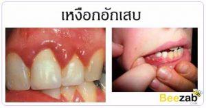 โรคเหงือกอักเสบ โรคในช่องปาก โรคเหงือก ปวดเหงือก