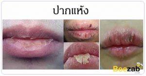 ปากแห้ง ริมฝีปากแห้ง โรคเกี่ยวกับปาก โรคไม่ติดต่อ