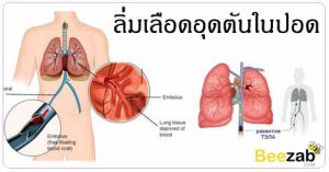 ลิ่มเลือดอุดตันในปอด โรคพีอี โรคระบบทางเดินหายใจ โรคปอด