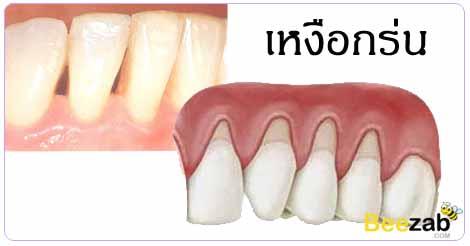 เหงือกร่น รักษาเหงือกร่น โรคในช่องปาก โรคเหงือกและฟัน