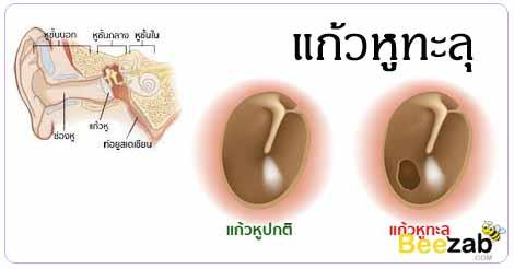 แก้วหูทะลุ โรคหูคอจมูก การรักษาแก้วหูทะลุ โรคหู