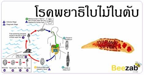 โรคพยาธิใบไม้ในตับ โรคพยาธิ โรคไม่ติดต่อ โรคติดเชื้อ