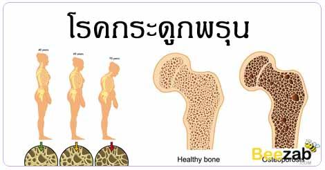โรคกระดูกพรุน โรคข้อและกระดูก โรคไม่ติดต่อ โรคผู้สูงอายุ