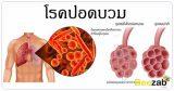 โรคปอดบวม โรคปอดอักเสบ โรคทางเดินหายใจ โรคติดเชื้อ