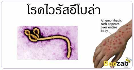 ไวรัสอีโลบ่า ไข้เลือดออกอีโบล่า โรคติดต่อ โรคติดเชื้อ
