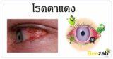โรคตาแดง โรคเยื่อบุตาขาวอักเสบ โรคตา โรคติดเชื้อ