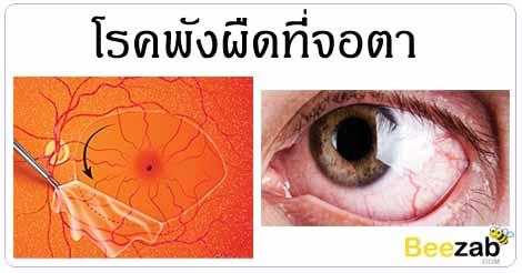 พังผืดที่จอตา โรคตา โรคไม่ติดต่อ มองภาพไม่ชัด