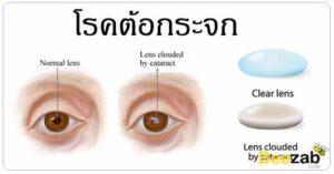 โรคต้อกระจก โรคตา โรคไม่ติดต่อ การรักษาต้อกระจก