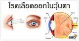 เลือดออกในวุ้นตา โรคตา สายตาพร่ามัว โรคต่างๆ
