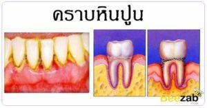 คราบหินปูน โรคในช่องปาก โรค การรักษาโรค