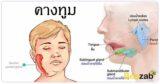 คางทูม โรคติดต่อ โรคติดเชื้อ การรักษาโรคคางทูม