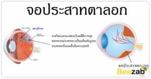 จอประสาทตาลอก โรคตา มองเห็นเป็นแสงแฟรช โรคการมองเห็น